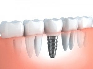 Graphic of Dental Implant In Line With Teeth