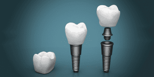 Rendering of Dental Implant Installation Progression