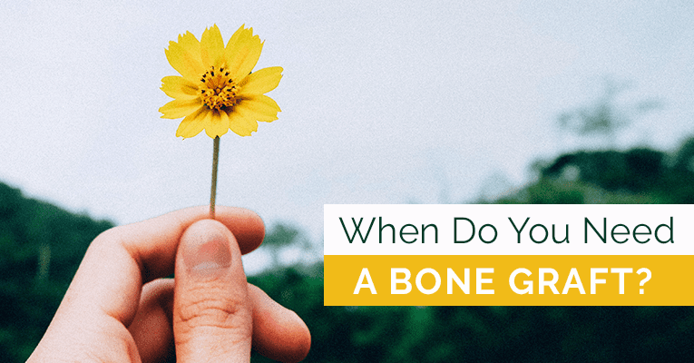When-do-You-Need-a-Bone-Graft