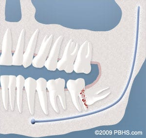 wisdom-tooth-damaging-other-tooth