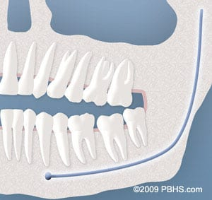 wisdom-tooth-soft-tissue-impaction